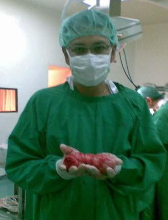 Mioma Dr Suryo Spog Kesehatan Reproduksi