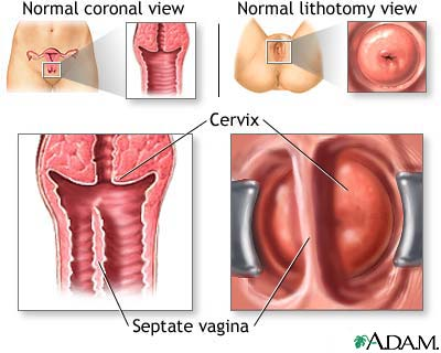 Macam bentuk vagina, italian pussy big tits