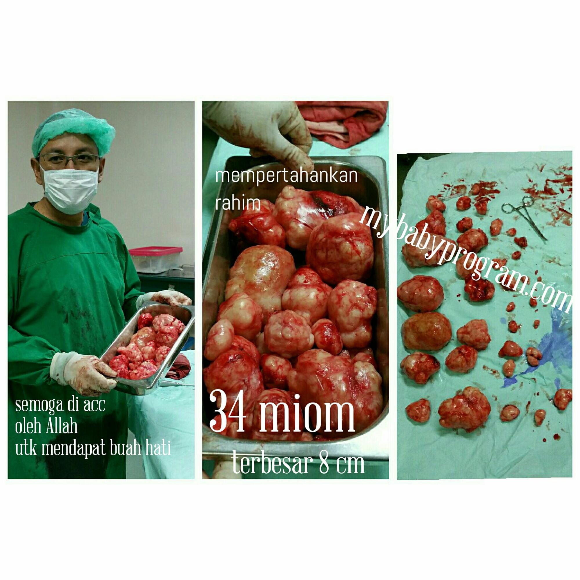 Menyingkirkan 34 Miom Dan Mempertahankan Rahim Sebagai Ikhtiar Mendapat Buah Hati Dr Suryo Spog Kesehatan Reproduksi