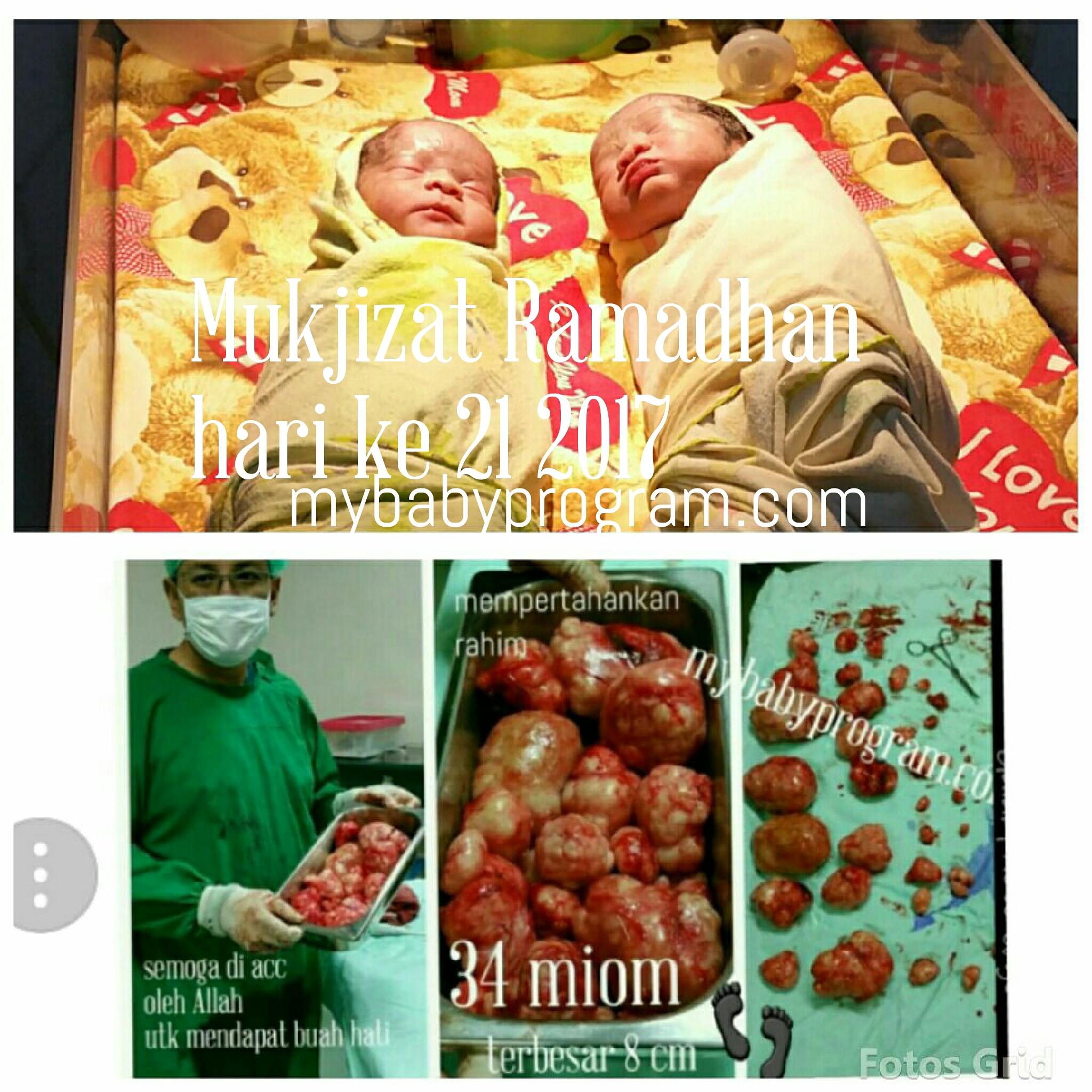 Mukjizat Ramadhan 34 Miom Twins Alias Kembar Vonis Angkat Rahim 11 Tahun Pernikahan Dr Suryo Spog Kesehatan Reproduksi